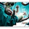 תשניק ונזקי גוף בלידת תאומים – האם עקב רשלנות רפואית?
