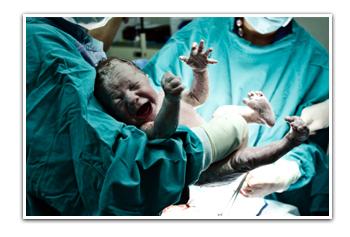 תשניק ונזקי גוף בלידת תאומים - האם עקב רשלנות רפואית?