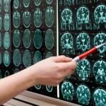 ניוון שרירים - מחלות הפוגעות בתפקוד השריר
